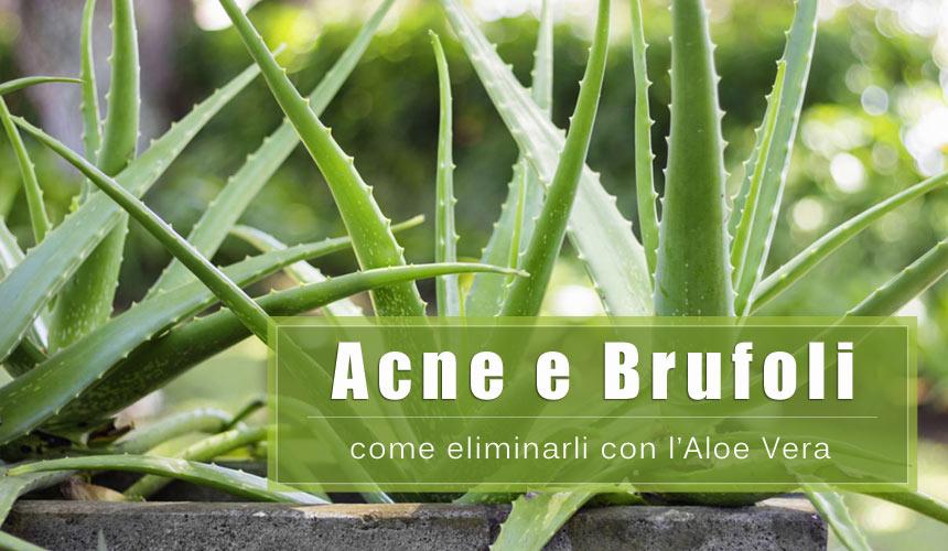 Come eliminare l'acne e i brufoli con l'Aloe Vera